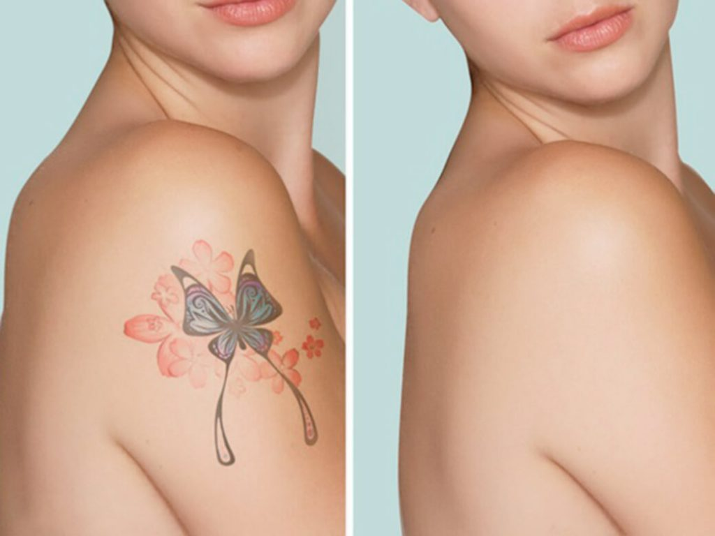 Things to consider before laser tattoo removal